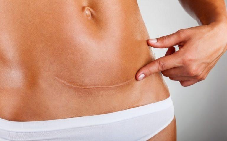 Cómo cuidar cicatrices después de la cirugía