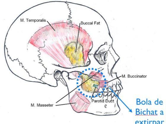 Bolas de Bichat - Cirugía Estética en Asturias - CLÍNICA FERNÁNDEZ