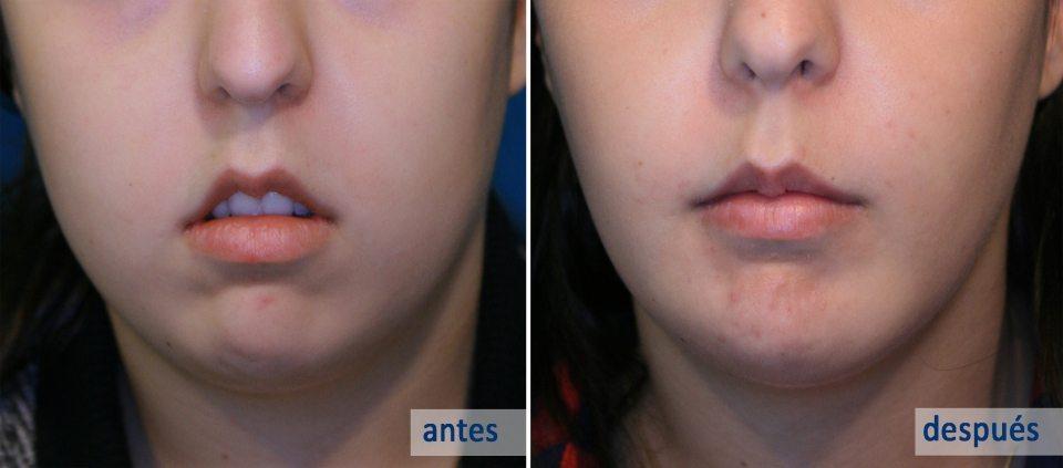 Qué son las Bolas de Bichat - Cirugía Estética en Asturias - CLÍNICA FERNÁNDEZ