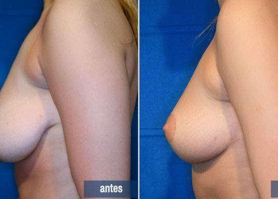 cirugía de elevación mamaria