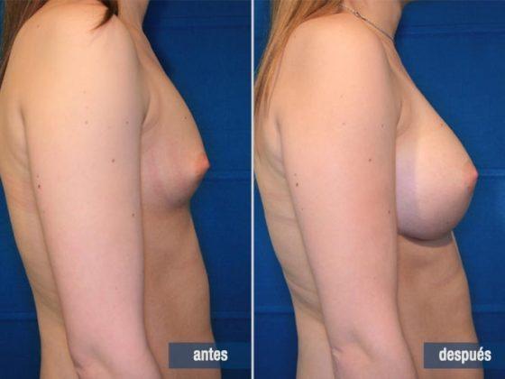 cirugía de aumento de mamas