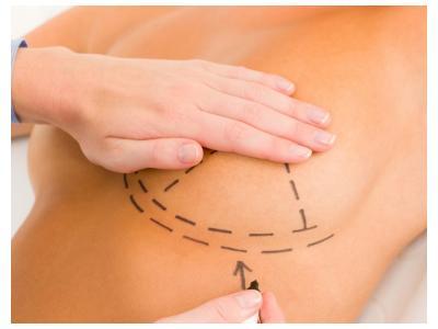 tipos de cirugía mamaria: una solución para cada problema