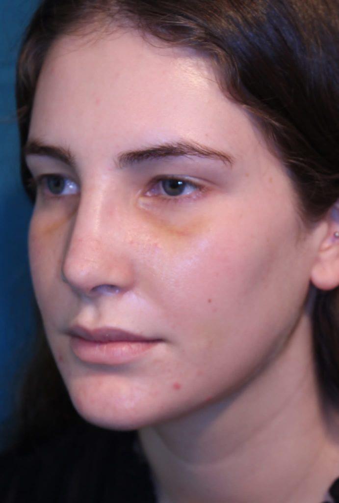 Caso de rinoplastia: a los 8 días del postoperatorio