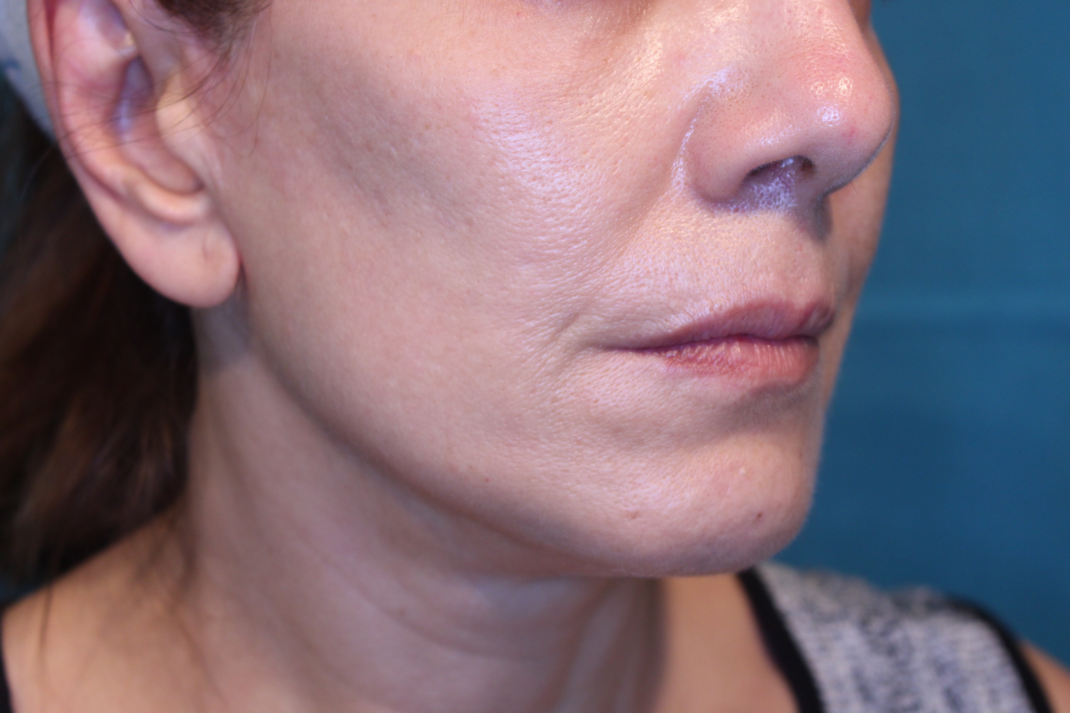Resultados Lifting Facial