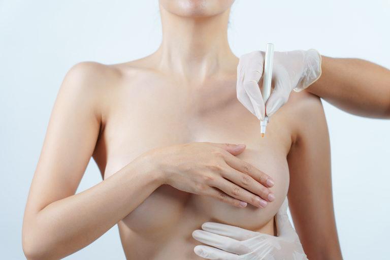 cirugía de elevación mamaria o mastopexia