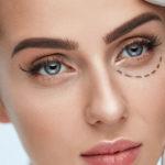 Ojeras y bolsas, causas, tipos y tratamientos para corregirlas - Cirugía Estética en Asturias